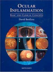 OCULAR INFELAMMATION BASIC AND CLINICAL CONCEPTS