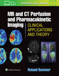 MR and CT Perfusion and Pharmacokinetic Imaging (HB-2016)