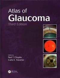 ATLAS OF GLAUCOMA 3ED (HB 2014)