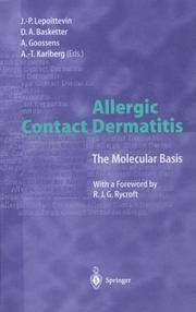Allergic Contact Dermaritis: The Molecular Basis