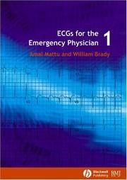 ECGs for the Emergency Physician