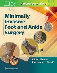 Minimally Invasive Foot and Ankle Surgery (HB-2016)