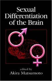 Sexual Differentiation of the Brain