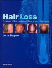Hair Loss: Principles of Diagnosis and Management of Alopecia