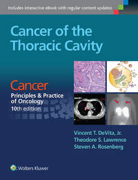 Cancer of the Thoracic Cavity, 10/E (PB-2016)
