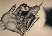 Die erweiterte abdominale operation bei carcinoma colli uteri
