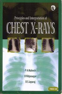 Principles and Interpretation of Chest X-rays