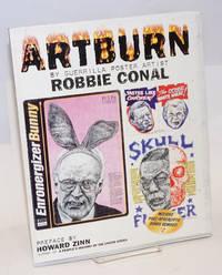 Artburn