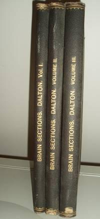 Topographical Anatomy of the Brain, 3 vols.