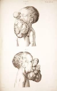 Museum Anatomicum Acadamiae Lugduno-Batavae