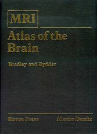 MRI Atlas of the Brain