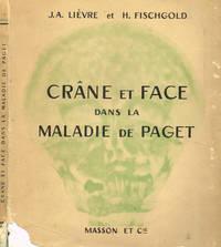 Crane et face dans la maladie de paget