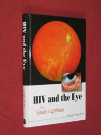 HIV and the Eye