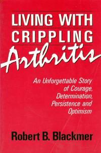 Living With Crippling Arthritis
