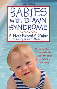 Babies with down Syndrome : A New Parents' Guide