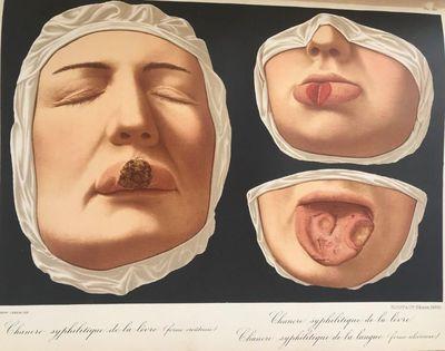 Le Musee de L'Hopital Saint-Louis;...