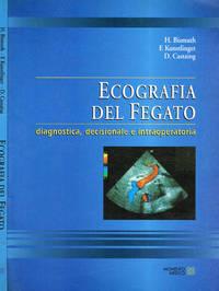 Ecografia del fegato