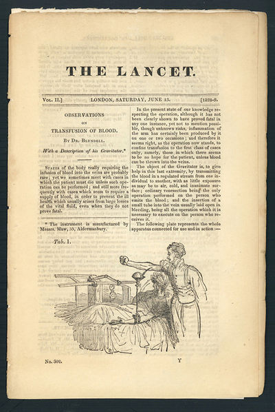 1828. Blundell, James (1790-1877). Observations on transfusion of blood. In The Lancet 2 (1828-29): ...