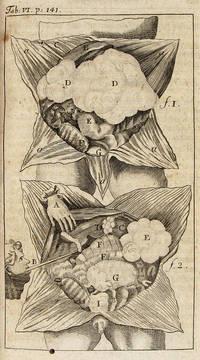 JACOBI CRESCENTII GARENGEOT ... SPLANCHNOLOGIA SIVE ANATOMIA VISCERUM. DAS IST: GRÜNDLICHE ABHANDLUNG VON ALLEN EINGEWEIDEN DIE IN DENEN DREYEN CAVITÄTEN DES MENSCHLICHEN CÖRPERS ENTHALTEN ... by Garengeot, René-Jacques Croissant de; Johann Alexander Mischel (trans.) - 1733