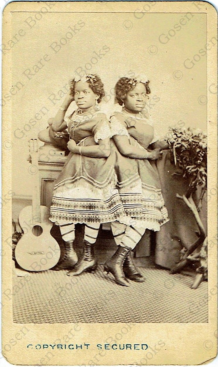 Carte De Visite Photograph Of Millie And Christine McKoy The Two Headed Nightingale