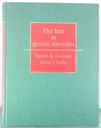 The Face in Genetic Disorders