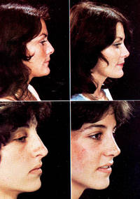 Aesthetic rhinoplasty. [Applied anatomy and physiology -- Aesthetics -- Basic technique -- Adjunctive techniques: Septal surgery, Tubinate surgery, Maxillary augmentation, Alar resection, Tip graft, Ear cartilage grafts -- Finesse in rhinoplasty -- Problem noses: Straight dorsum, Short nasal bones, Crooked nose, Tip with inadequate projection, Ultraprojecting tip, Malposition of the lower lateral cartilages -- Secondary rhinoplasty]