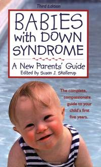 Babies with Down Syndrome: A New Parents' Guide