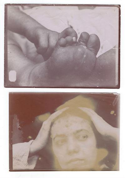 8 Medical Photos of Venereal Skin...