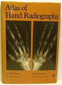 ATLAS OF HAND RADIOGRAPHS.